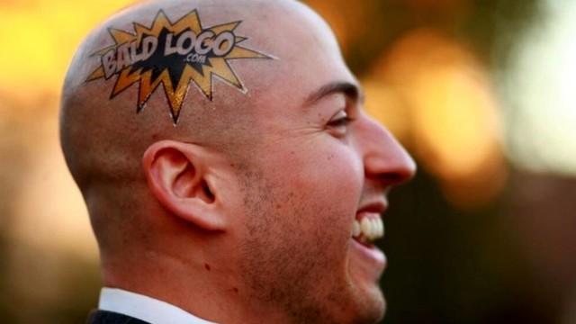 bald-logo