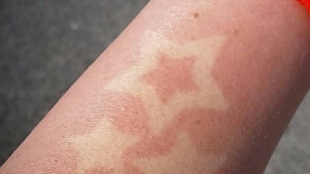 sunburn-tattoo